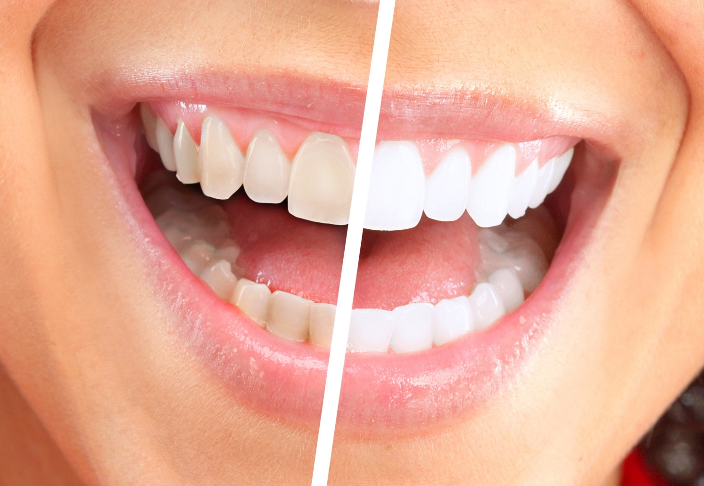 Чем отбелить зубы профессионально